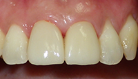 2 upper front teeth restored with porcelain crowns_IMG_0408.PNG