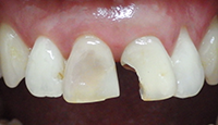 2 upper front teeth restored with porcelain crowns_IMG_0409.PNG