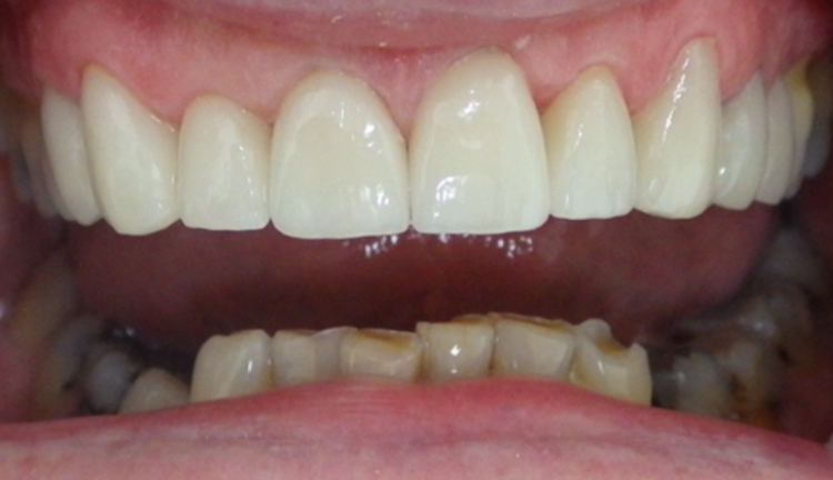 10 porcelain veneers and crowns _ Makeover in progress_IMG_0354.PNG